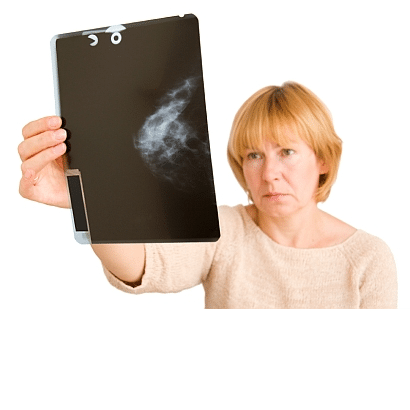 What should women do about ductal carcinoma in situ?