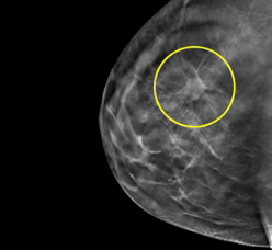 Which journalists reported an extra dimension on the 3 d mammography
