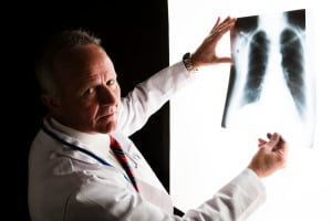 Doctor looks back at the camera with a serious face as he examines a chest x-ray on a lightbox. Camera: Canon EOS 1Ds Mark III.