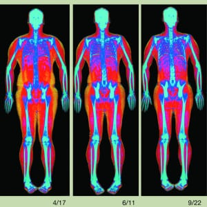 A DXA body composition scan featured in the Wall Street Journal.