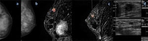 Mammography (left) and MR imaging (right). Credit: RSNA