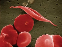 NIH sickle cell image