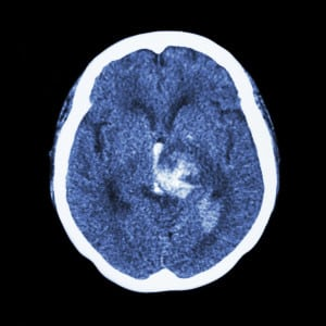 CT scan of brain hemorrhage