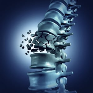 Spinal Fracture
