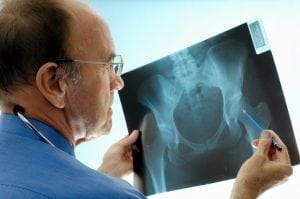 Orthopaedic surgeon consulting pelvic x-rays for a hip replacement.