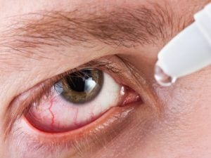 Man dropping medicine into eye