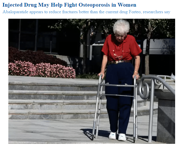 A woman with osteoporosis