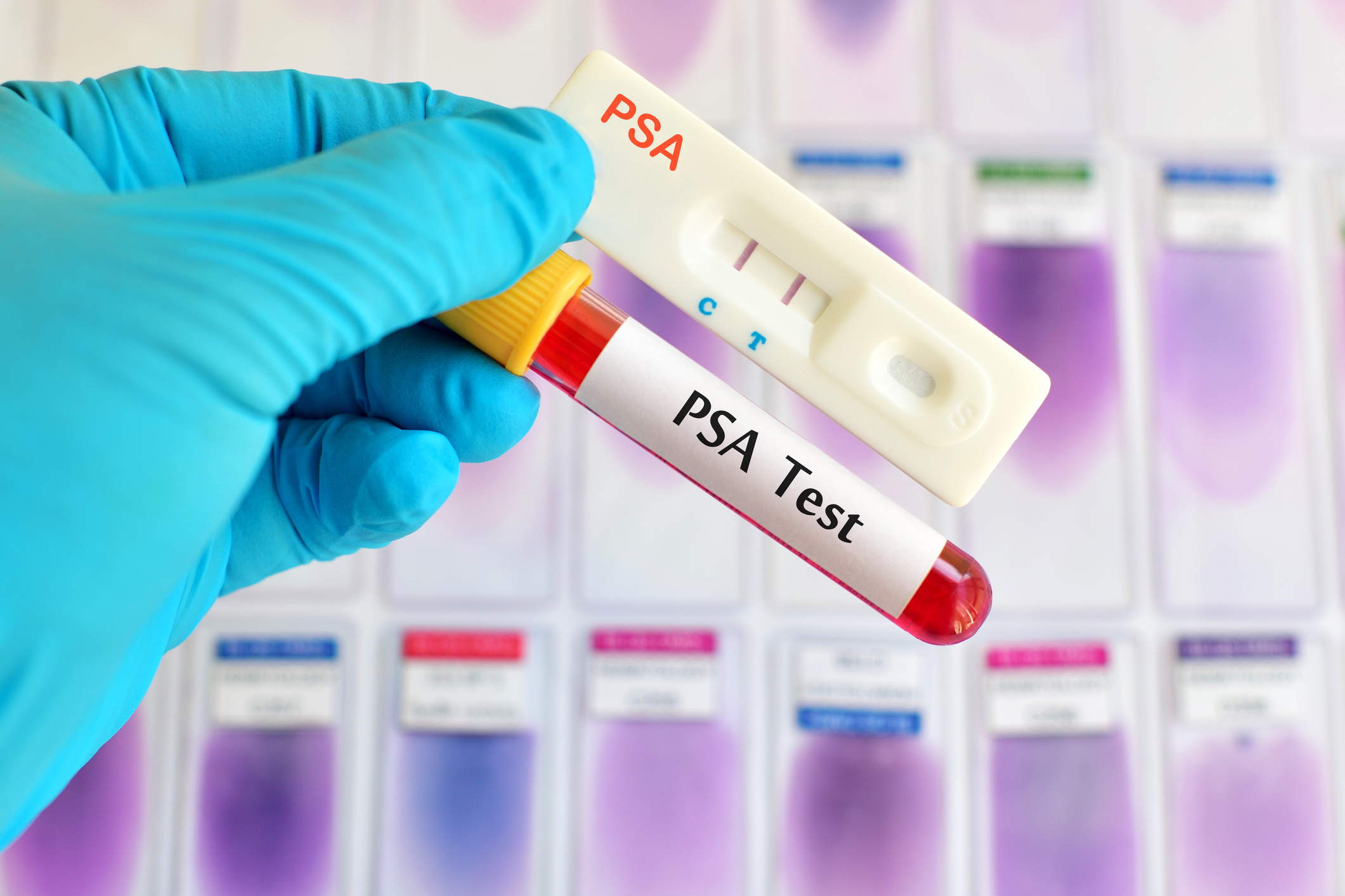 Panel changes recommendation on PSA testing