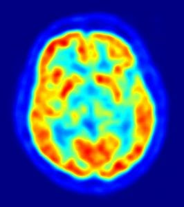 Sample PET scan of the brain. Credit: Jens Maus/Wikipedia