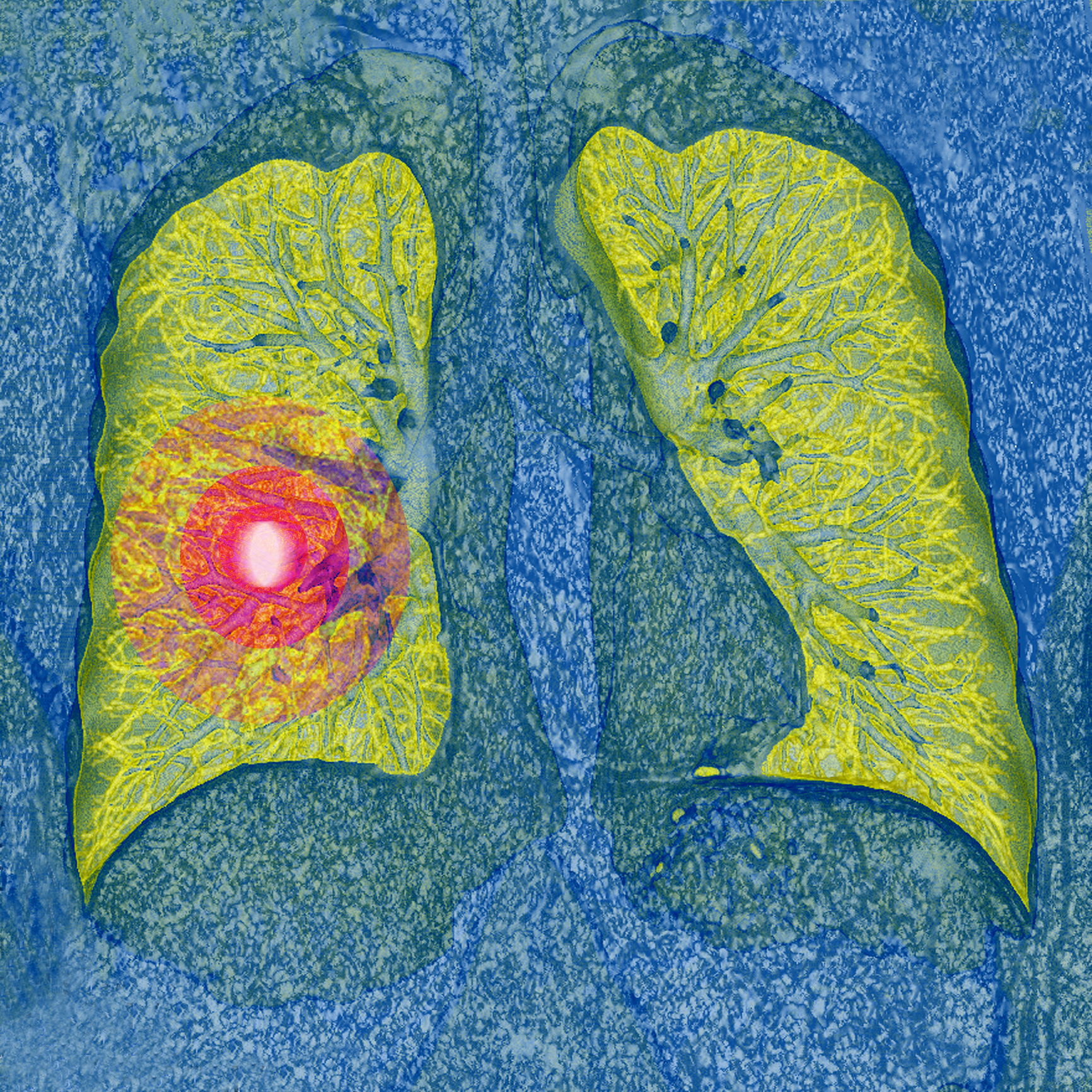 Why Theres Disagreement Over Screening >> Harms Of Lung Cancer Screening Prove Greater Than Expected