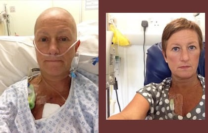 Cancer misinformation in various media irks breast cancer patients in US & UK
