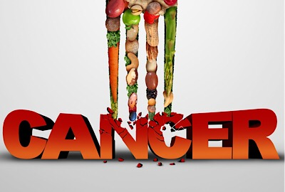 cancer diet