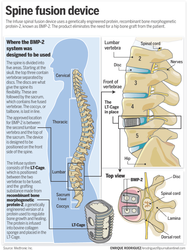 Lumbar Fusion Surgery Side Effects